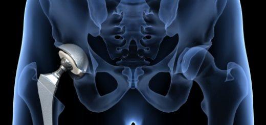 hueftprothese